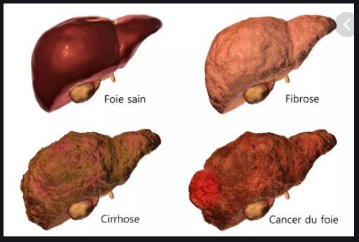 Cirrhose Symptômes Traitement Naturel Cirrhose de Foie.